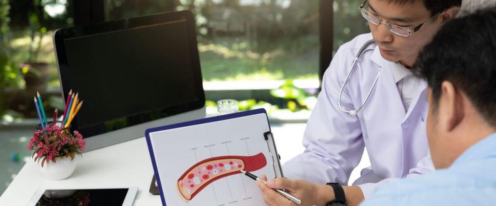 Arteriosklerose: Wenn verengte Gefäße den Blutfluss stören