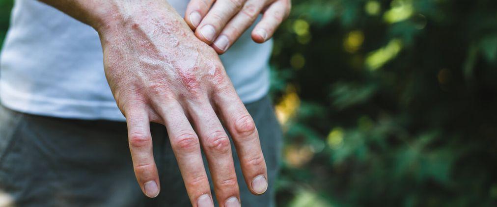Schuppenflechte: Betroffene leiden unter Ausgrenzung