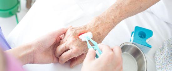 Wunden: Tipps für den Umgang mit Hautverletzungen